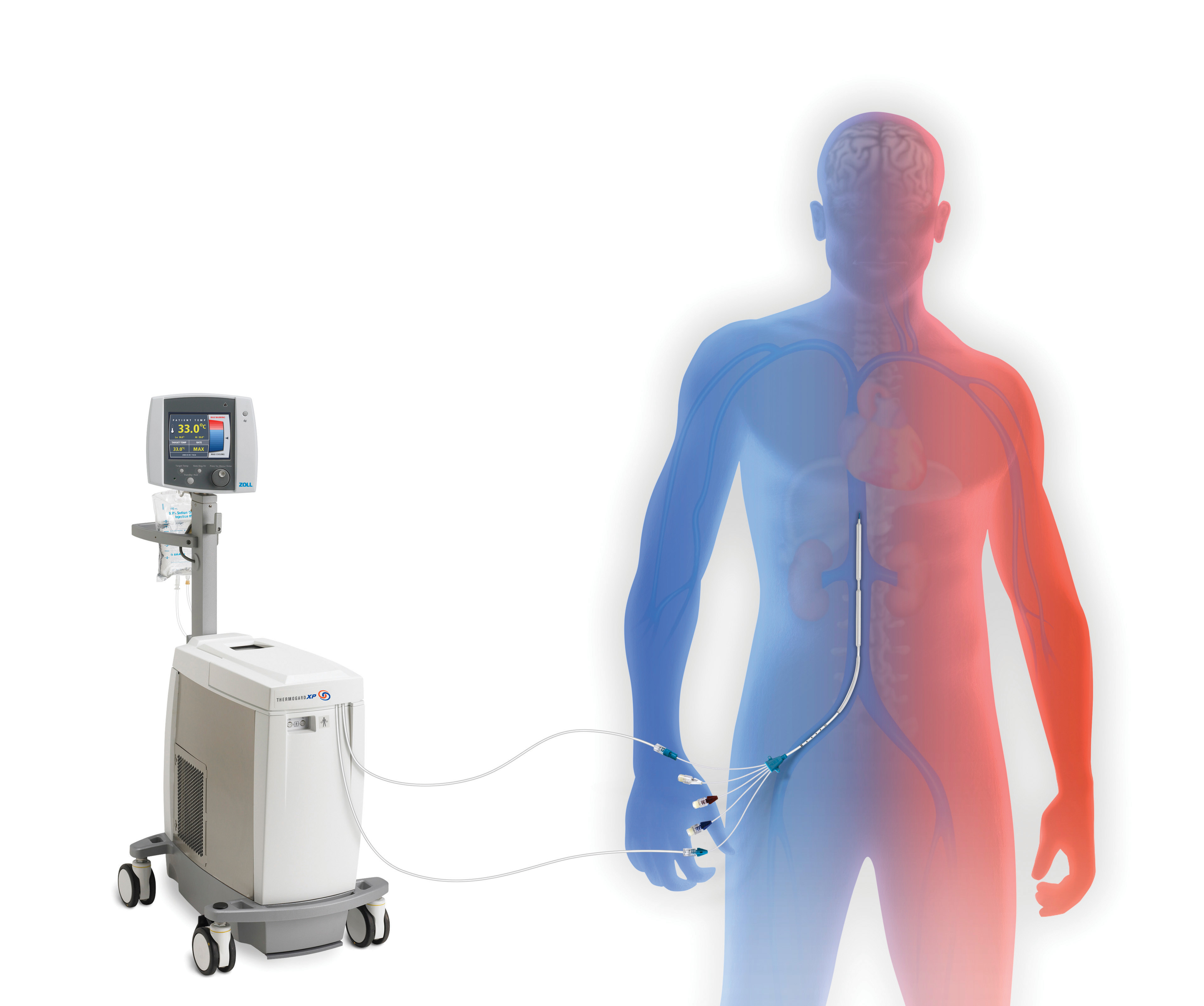 ZOLL Receives Approval to Market Intravascular Temperature Management Technology for Sudden Cardiac Arrest in Japan | Business Wire