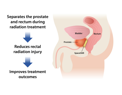 SpaceOAR® System – Rectal Protection for Prostate Cancer Radiation Therapy Patients (Photo: Business Wire)