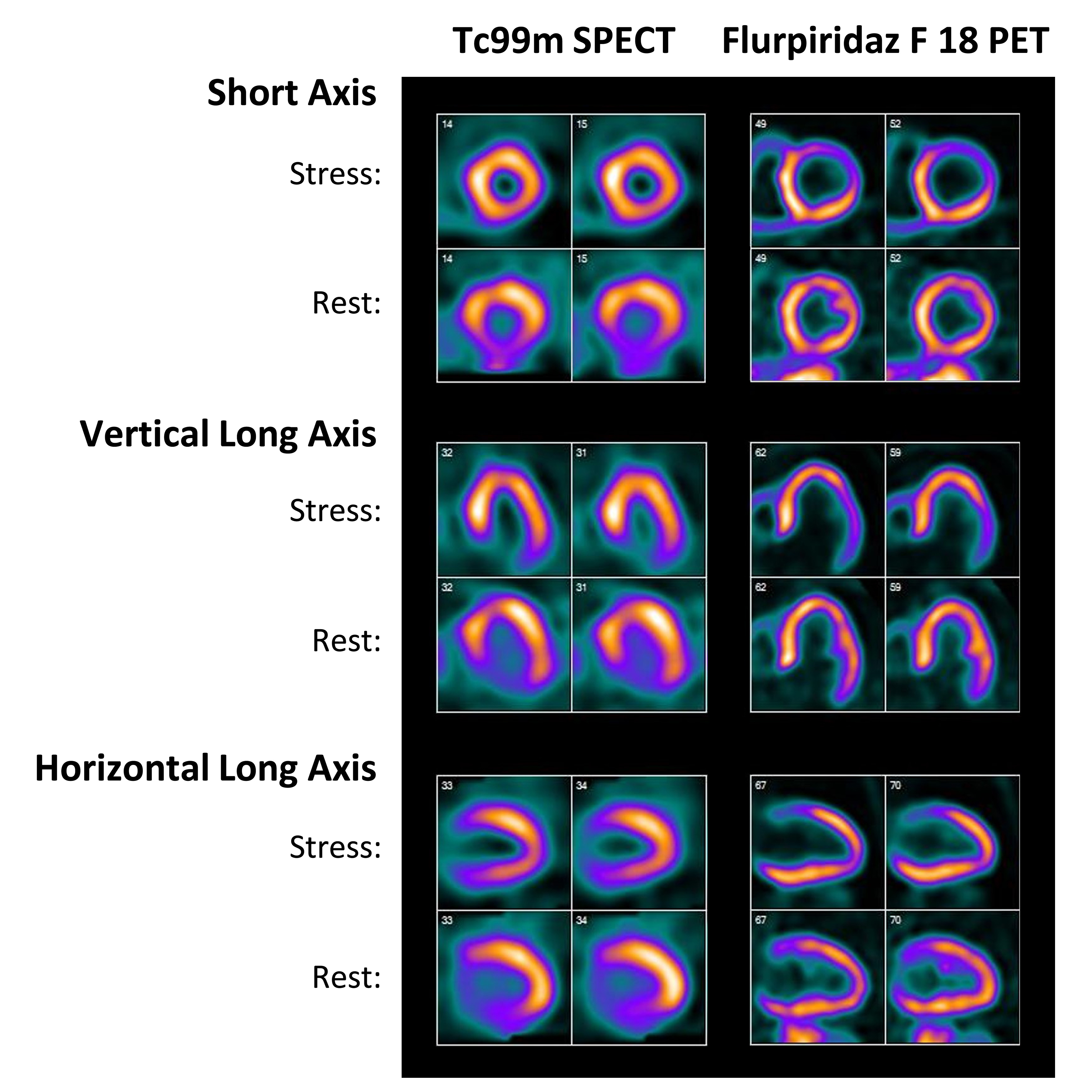 Lantheus Presents New Data on the Effectiveness of Novel PET Cardiac  Imaging Agent Flurpiridaz F 18 in Obese Patients with Suspected Heart  Disease at ACC ...