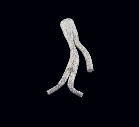 The GORE EXCLUDER Iliac Branch Endoprosthesis is the most recent off-the-shelf aortic branch device approved in Canada for the endovascular treatment of common iliac artery aneurysms or aortoiliac aneurysms. (Photo: Business Wire)