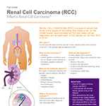 Renal Cell Carcinoma Fact Sheet