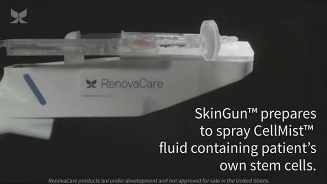 Ultra-gentle RenovaCare SkinGun™ sprayer