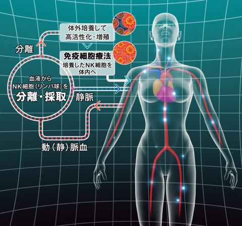 がん免疫細胞治療のしくみ (画像:ビジネスワイヤ)