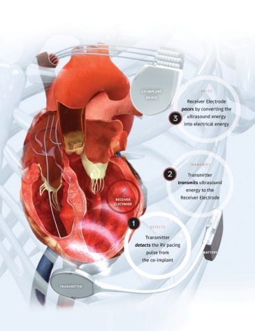 The WiSE CRT System uses a tiny implant in the left ventricle to synchronize the heart, overcoming limitations of traditional Cardiac Resynchronization Therapy (CRT) in heart failure patients. (Graphic: Business Wire)