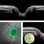 Analysis of the optic nerve head with Heidelberg Engineering's SPECTRALIS® Glaucoma Module Premium Edition (Photo: Business Wire)