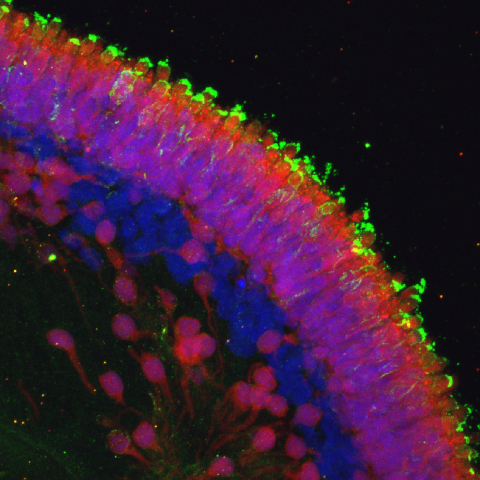 Maturing photoreceptors. (Photo: Business Wire)