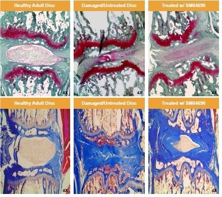 Images from intervertebral discs treated with vehicle or 33μg/mL SM04690 (C8/9 and C9/10) 8 weeks post-injury and stained with Safranin O/Fast Green (top panels) or Masson's Trichrome (lower panels) (Graphic: Business Wire)
