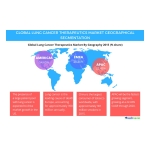 Technavio publishes a new market research report on the global lung cancer therapeutics market from 2016-2020. (Graphic: Business Wire)