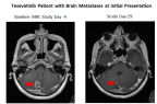 A patient with EGFR mutation-positive NSCLC with brain metastases and with no prior treatment (left) showed a partial response in the brain in an MRI taken after 29 days of tesevatinib therapy (right) and showed a partial response in both brain metastases and peripheral disease after 57 days of tesevatinib therapy (Photo: Business Wire)