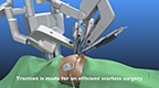 Demonstration of a magnetic scarless robotic cholecystectomy (gallbladder surgery) using the FDA-approved-Levita™ Magnetic Surgical System.