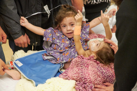 The twins, Eva and Erika Sandoval, photographed on the morning of Dec. 6, minutes before they were brought to the OR to begin the lengthy 17-hour process of separation surgery at Lucile Packard Children's Hospital Stanford. (Photo: Business Wire)