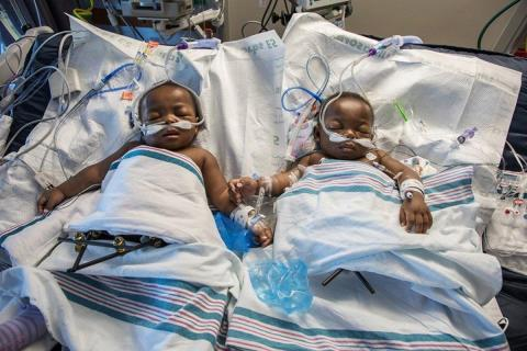 Twin girls Miracle and Testimony Ayeni recovering at Le Bonheur Children's Hospital while receiving  ...