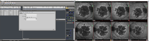 The next generation HEYEX software in a dual monitor setup: The monitor on the left shows the naviga ...