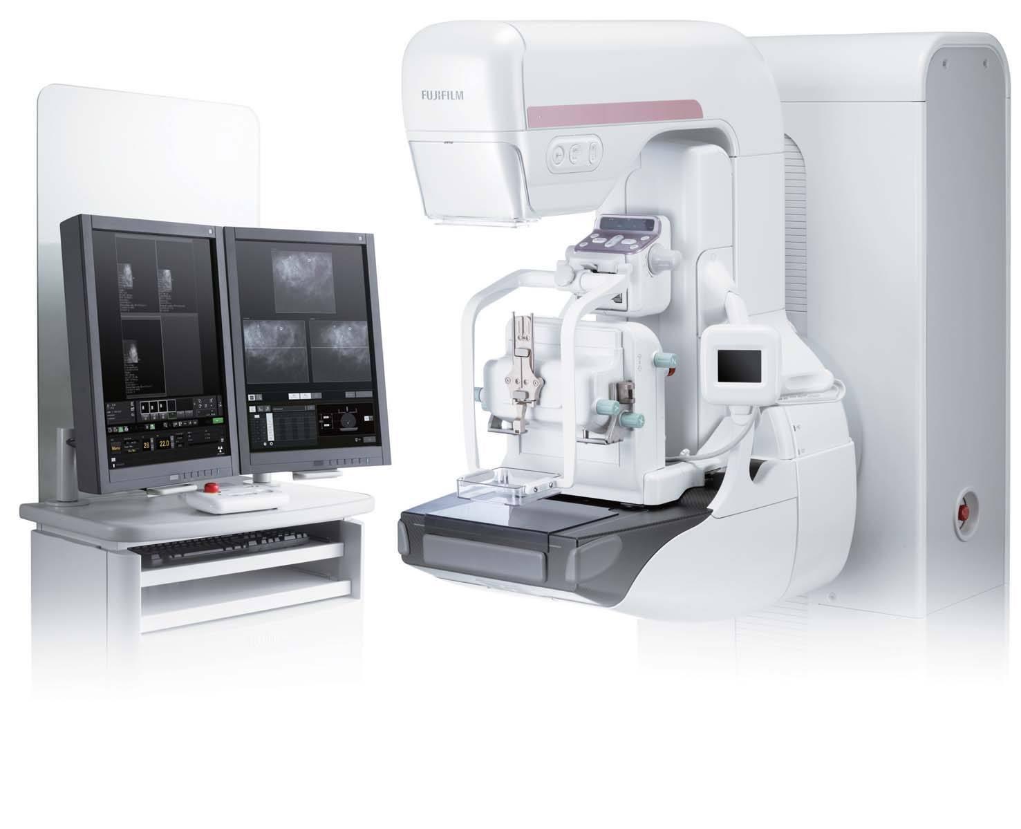 Digital tomosynthesis mammography
