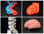 3D-printed organ models produced by SiMMo3D that make use of malleable and hard synthetic polymers. (Photo: Business Wire)