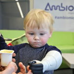 Two-year-old Sol with his fully-functioning Stratasys 3D printed hydraulic prosthetic arm, which enables him to move his thumb on his own (Photo: Business Wire)