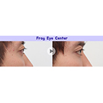 Before and after the ocular proptosis surgery of EFIL Plastic Surgery (Graphic: Business Wire)