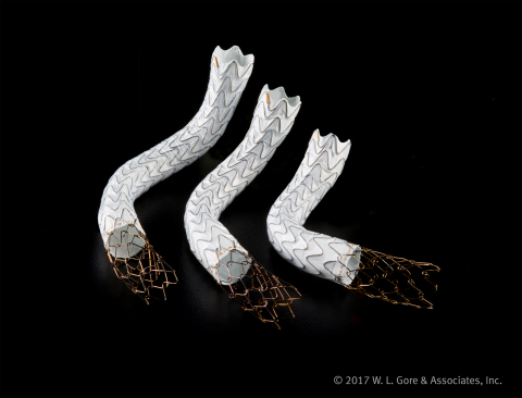 Gore announces the FDA approval and U.S. launch of the GORE® VIATORR® TIPS Endoprosthesis with Contr ...