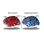 Brain scans of chronically depressed patients before and during treatment. Left: Before treatment, depressed patients had a thicker cortex in the frontal, temporal and parietal lobes of the brain (shown in red). Right: Over 10 weeks of medication, these regions (shown in blue) no longer differed from the thickness of healthy controls. (Graphic: Business Wire)