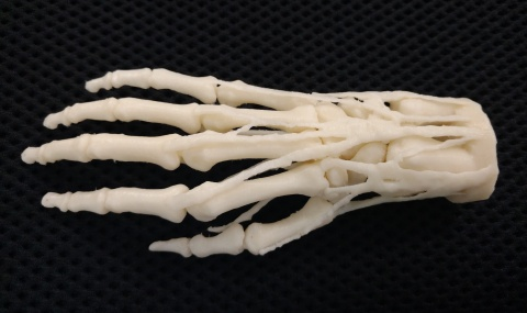 3D printed hand model for teaching, diagnosis, procedural planning. Digital file is a VA resource, h ...