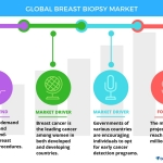 Technavio has announced the release of their 'Global Breast Biopsy Market 2017-2021' report. (Graphic: Business Wire)