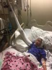 Yaritza Angulo Urquiza in the hospital burn ward. (Photo: Business Wire)
