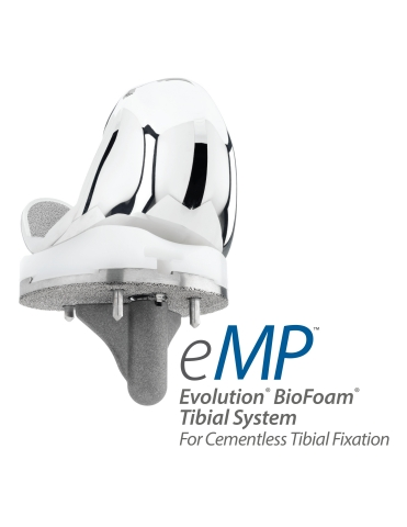Evolution BioFoam Tibial System for Cementless Tibial Fixation (Photo: Business Wire).