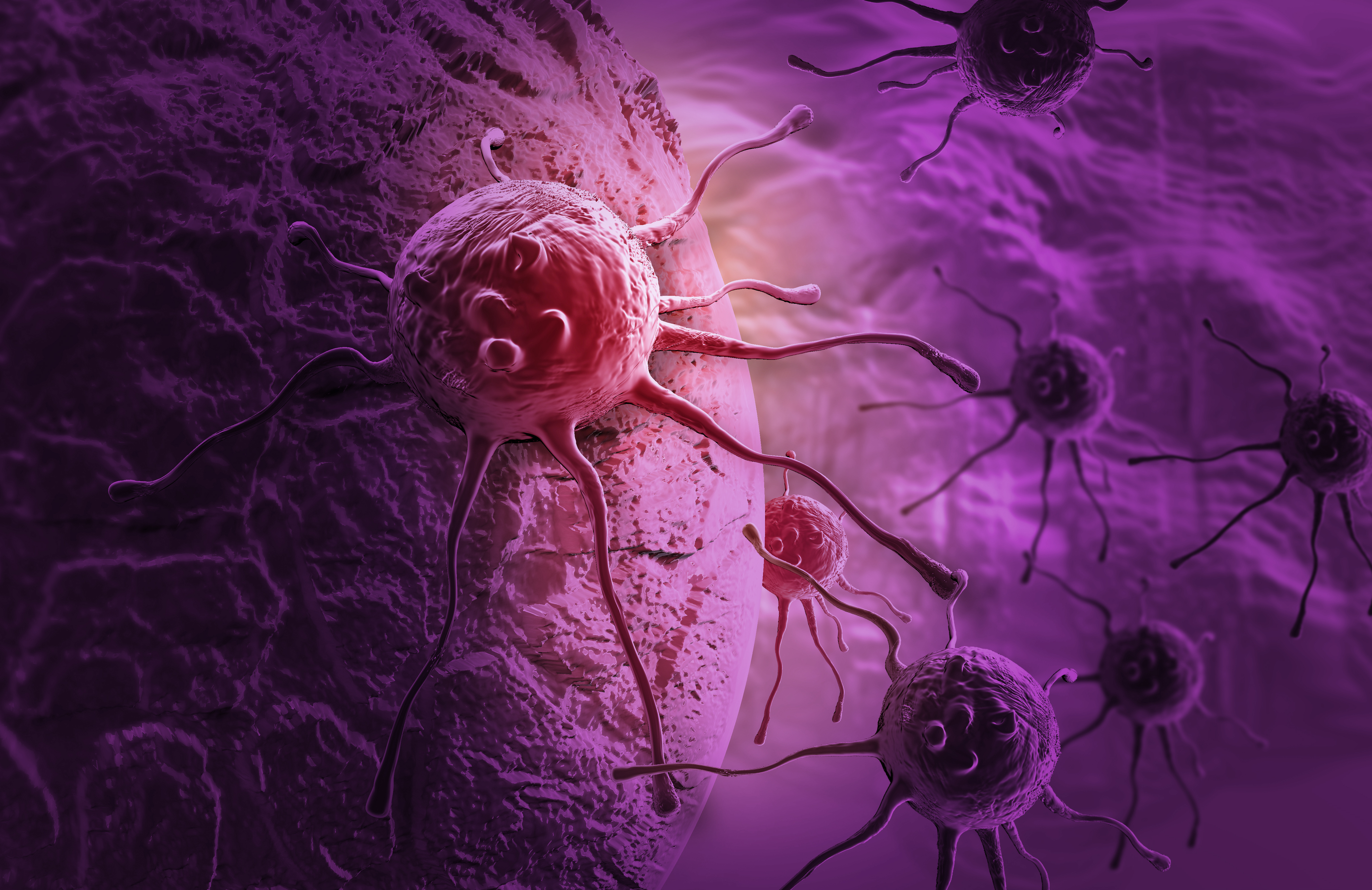 Pancreatic cancer cells (Photo: Business Wire)