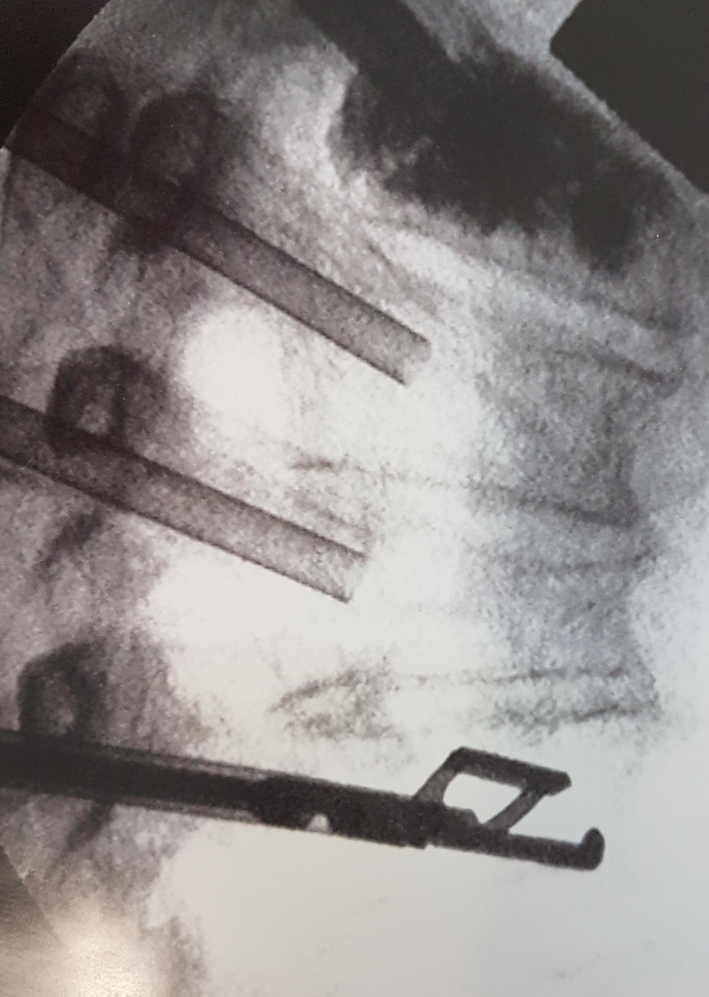 Déploiement du dispositif Jack sur une FVC (Photo: VEXIM)