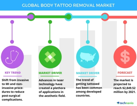 Technavio has published a new report on the global tattoo removal market from 2017-2021. (Graphic: Business Wire)