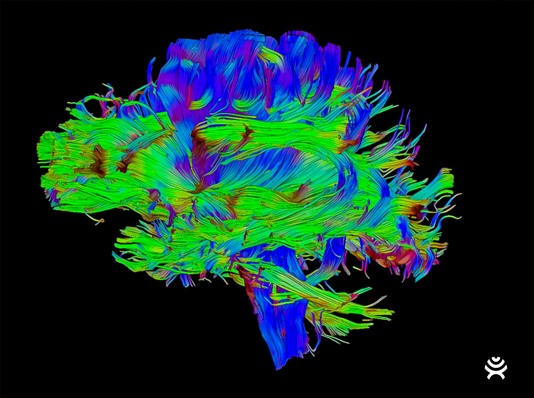 Synaptive Medical's BrightMatter technology