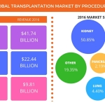Technavio has published a new report on the global transplantation market from 2017-2021. (Graphic: Business Wire)