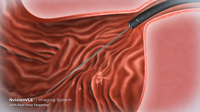The NvisionVLE® Imaging System enables physicians to visualize tissue microstructure during a standard endoscopy procedure. The new Real-time Targeting™ feature, in combination with an improved workflow, enables more accurate targeting, potentially leading to improved diagnosis and more effective therapeutic options for patients.