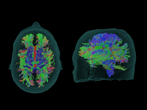 BrightMatter™ Plan by Synaptive Medical automatically generates 3D, dynamic whole brain tractography using an advanced type of MRI called diffusion tensor imaging to provide a complete picture, representing the white matter in the brain. The software makes this unprecedented automation and level of detail clinically available for the first time. (Photo: Business Wire)