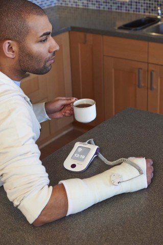 A patient treats his nonunion fracture with LIPUS using the EXOGEN Ultrasound Bone Healing System. ( ...