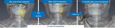Illustration : 3D reconstruction of CT scan (tumor in yellow) patient treated at a 15% dose level showing a Complete Response 7 months after the end of the treatment. (Photo: Business Wire)