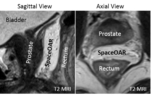 One of the initial SpaceOAR hydrogel treated patients in the University of Tokyo SBRT Study (Photo: Business Wire)