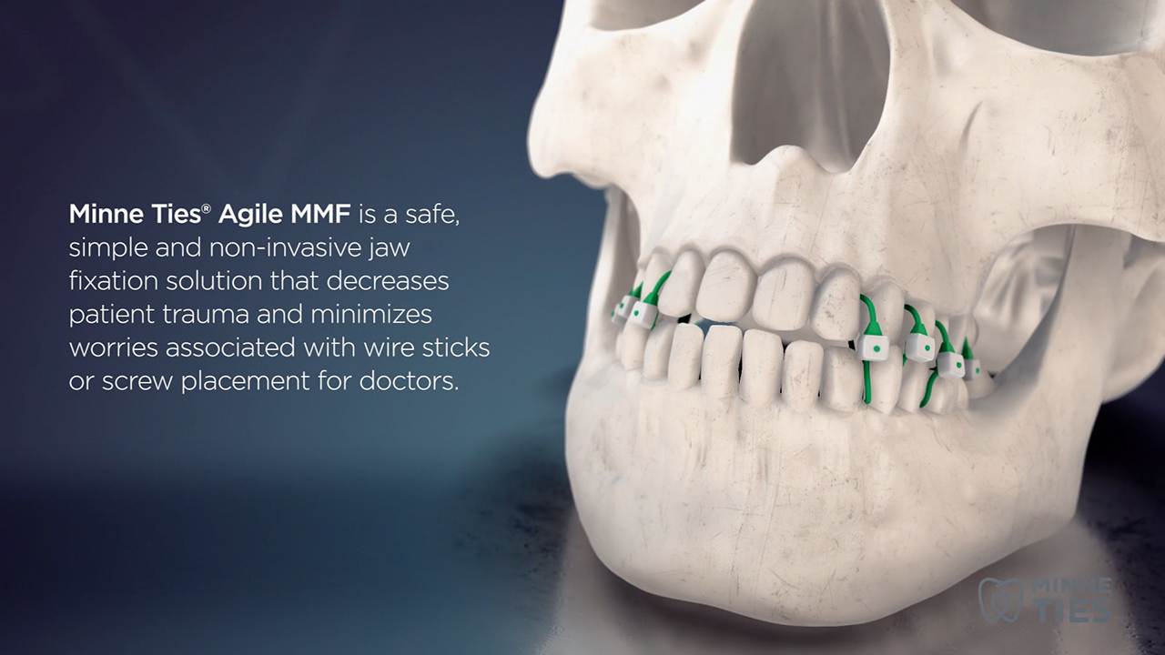 Minne Ties Agile MMF is a non-invasive approach to achieving MMF in a safe, simple and efficient way. See how they work in this short video.