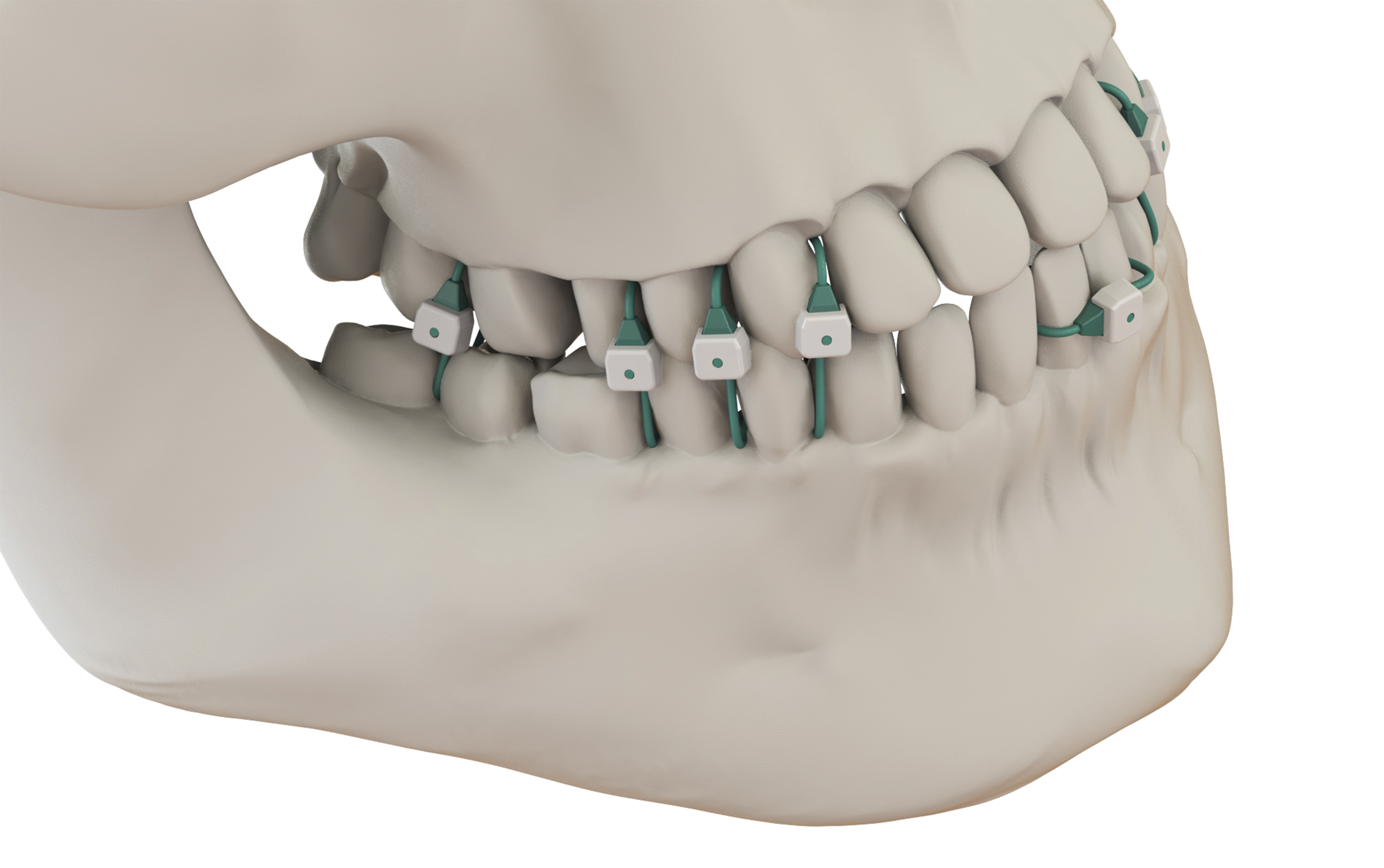 Minne Ties medical grade sutures securely hold the jaw in a closed position with less discomfort than metal wires to the patient and can be applied without the worry of wire stick risks to the surgeon. (Photo: Summit Medical, Inc.)