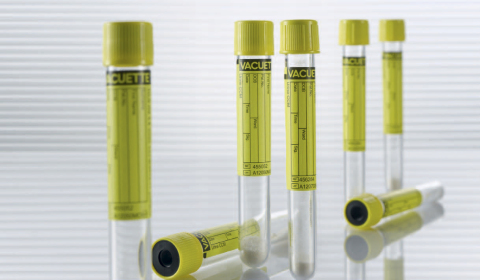 VACUETTE® Urine CCM Tube Product Link (Photo: Business Wire)