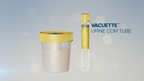 VACUETTE® Urine CCM Tube Product Overview