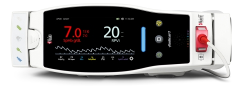 Masimo Radical-7® Pulse CO-Oximeter® with RPVi™ (Photo: Business Wire)