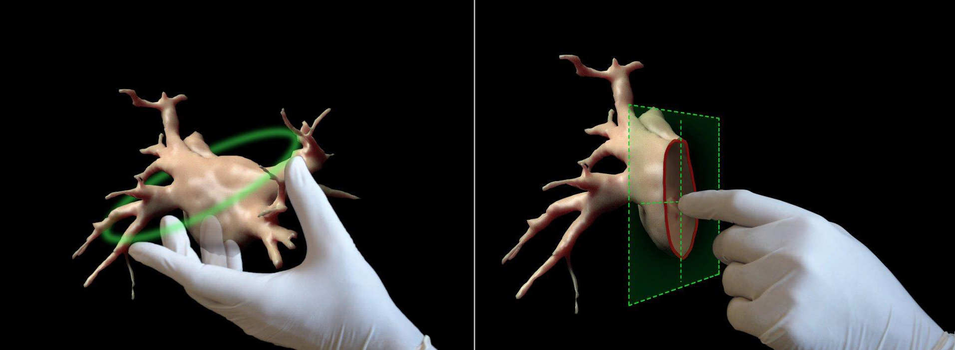 Holograms to be used to help heart surgeons during medical