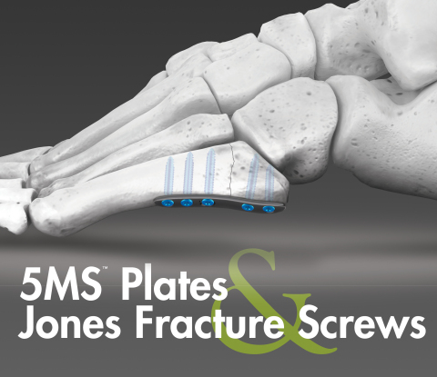 5MS Fracture Repair System (Graphic: Business Wire)