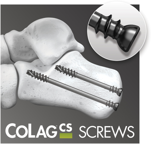 CoLag Locking Compression Screw System (Graphic: Business Wire)