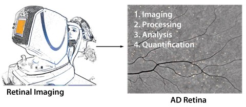 In this simplified illustration, spots represent presumed amyloid plaques.   PHOTO/IMAGE CREDIT: JCI Insight. 2017; 2(16):e93621. doi:10.1172/jci.insight.93621 Retinal amyloid pathology and proof-of-concept imaging trial in Alzheimer's disease Yosef Koronyo ... Keith L. Black, Maya Koronyo-Hamaoui Published August 17, 2017 Citation Information: JCI Insight. 2017;2(16):e93621. doi:10.1172/jci.insight.93621