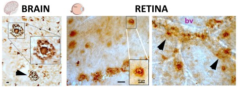 Shown here are the pathological hallmarks of Alzheimer's disease, beta-amyloid plaques (brown spots), as seen both in brain and retinal tissues from deceased patients, as described in the Aug. 17 edition of Journal of Clinical Investigation Insight (Koronyo et al. 2017). The structures of these plaques in the brain and retina are very similar (classical and vascular-associated deposits; bv = blood vessel), suggesting that the retina faithfully represent the brain disease.   PHOTO CREDIT: Image adapted from JCI Insight. 2017; 2(16):e93621. doi:10.1172/jci.insight.93621 Retinal amyloid pathology and proof-of-concept imaging trial in Alzheimer's disease Yosef Koronyo ... Keith L. Black, Maya Koronyo-Hamaoui Published August 17, 2017 Citation Information: JCI Insight. 2017;2(16):e93621. doi:10.1172/jci.insight.93621