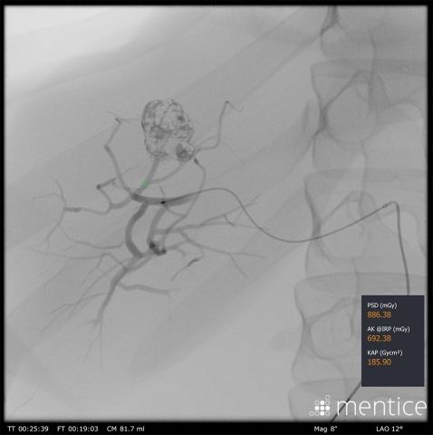 Mentice transarterial chemoembolization training software – fluoro (Photo: Business Wire)