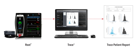 Masimo Trace™ Data Visualization and Reporting Tool (Photo: Business Wire)
