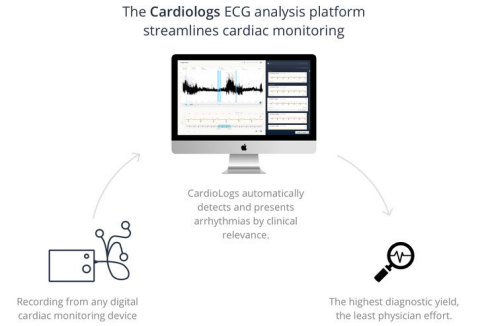 Cardiologs Raises $6.4 Million to Lead the AI Revolution in Cardiology (Photo: Business Wire)